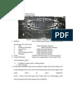 Klasifikasi Impaksi Molar 3
