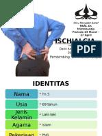 ischialgia