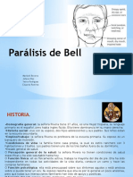 Parálisis de Bell