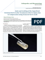 Internal Neurolysis and Grafting of the Superficial Peroneal Nerve in the Treatment of Nerve Injury due to Compression using Avance® Nerve Graft