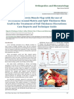Peroneus Brevis Muscle Flap with the use of INTEGRA® Wound Matrix and Split Thickness Skin Graft in the Treatment of Full Thickness Ulcerations