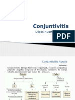 Conjuntivitis