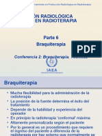 Braquiterapia 2
