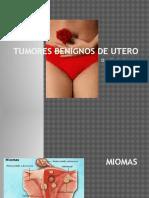 Tumores Benignos de Utero