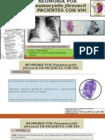 Neumonia Por Pneumocystis Jiirovecii en VIH