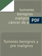 Tumores Benignos Malignos y Cáncer de Piel