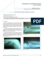 Multi-Fractured Arm Salvage and Reconstruction