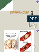 stroke-cvd.ppt
