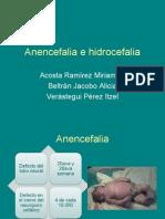 Anencefalia e hidrocefalia