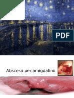Absceso Peri Amigdalino