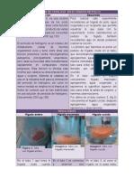 practicahigadoparablog-120208191849-phpapp02.docx