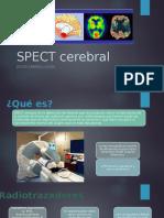 SPECT Cerebral
