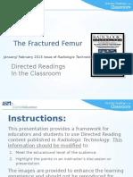 fractured_femur.pptx