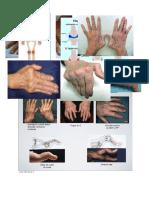 Deformacion Artritis reumatoide