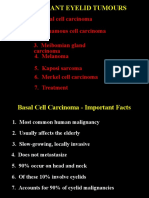 05Malignant Eyelid Tumours