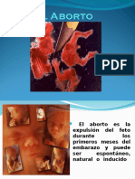Clasificacion Del Aborto