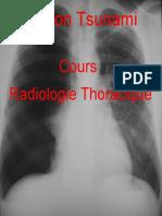 Cours Radiologie Thoracique