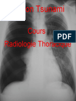 Cours Radiologie Thoracique