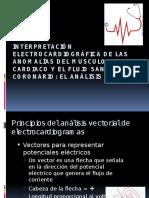 aritmias cardiacas