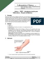 """Teste Tuberculínico – """"PPD"""" – Intradermo-reação para Tuberculose – Reação de Mantoux"""