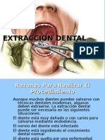 Extraccion Dental