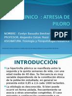 Atresia Del Piloro, Presentacion de Un Caso Clinico, Srta. Evelyn Basualto