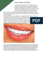 Estetica dental -  alicante y lugares extrarradio
