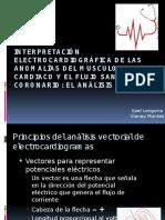 interpretacinelectrocardiogrficadelasanomalasdelmusculocardiaco-130309202237-phpapp01
