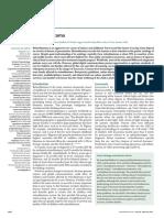 Retinoblastoma Lancet