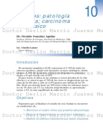 Tiroides Patologia Maligna Carcinoma Anaplasico