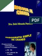 Diagnóstico Por Imagen - Radiología de Craneo