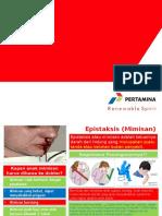 epistaksis-april.pptx