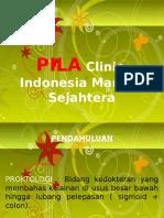 PILA Hemorroid
