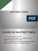 gastrectoma