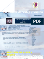 Cancer de Vulva y Vagina