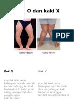 Kaki O dan kaki X