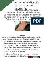 Prevención de Ulceras Por Isquemia