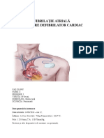 1fibrilatie Atriala Montare Defibrilator