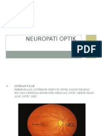 Neuropati Optik (Ika)