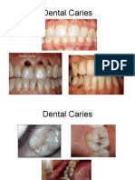 Proses Caries
