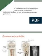 osteomielitis 2.ppt