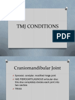 Tmj Conditions