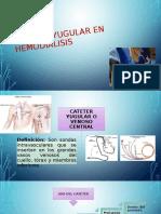 Presentacion de Cateter Yugular