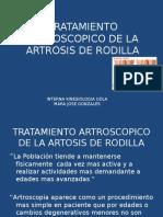Tratamiento Artroscopico de La Artrosis de Rodilla y Lesiones Condrales