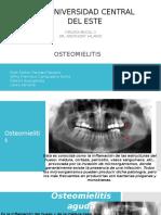 Osteomielitis Presentacion