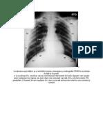 Segmentatia pulmonara