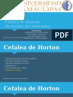 14. CEFALEA- Cefalea de Horton. Tic Doloroso (Neuralgia) Del Trigemino
