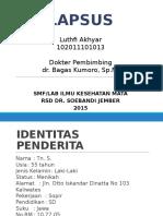 Lapsus Pterigium mas luthfi.pptx