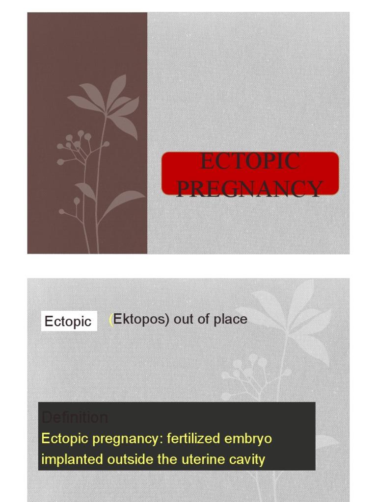 Ektopos online dating