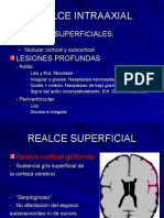 Realce intraaxial